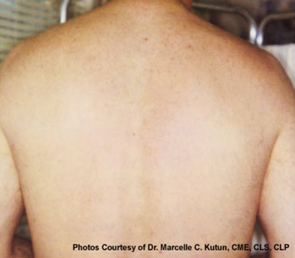 Laser Hair Removal after image
