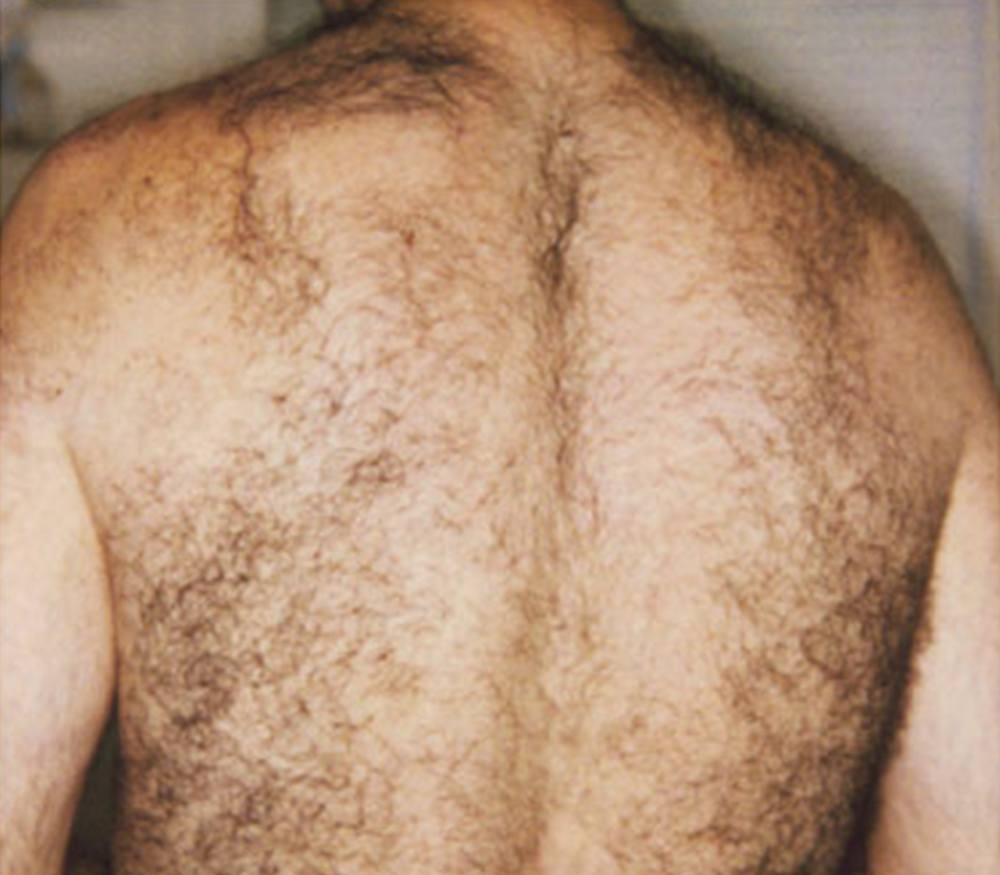 Laser Hair Removal before image