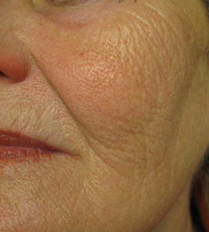 Laser Skin Rejuvenation after image