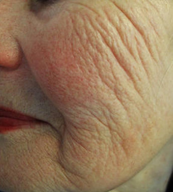 Laser Skin Rejuvenation before image